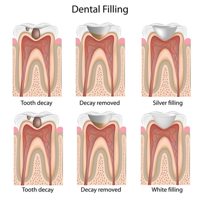 Dental Filling in Melbourne