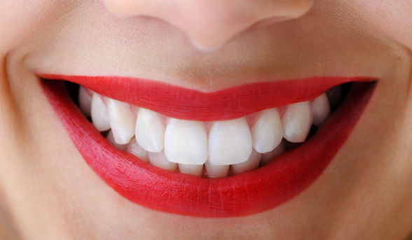 Teeth Whitening Box Hill Prices
