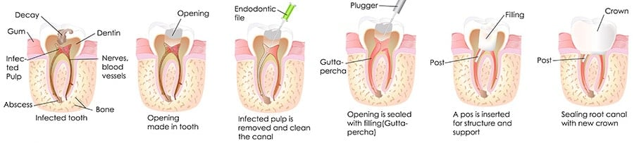 Root Canal | Guide On Root Canal Treatment | Prices